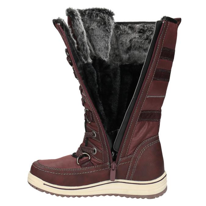 Dámske snehule s kožúškom bata, červená, 599-5614 - 19